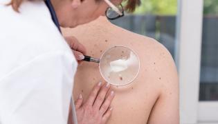 Dermatolog ogląda skórę