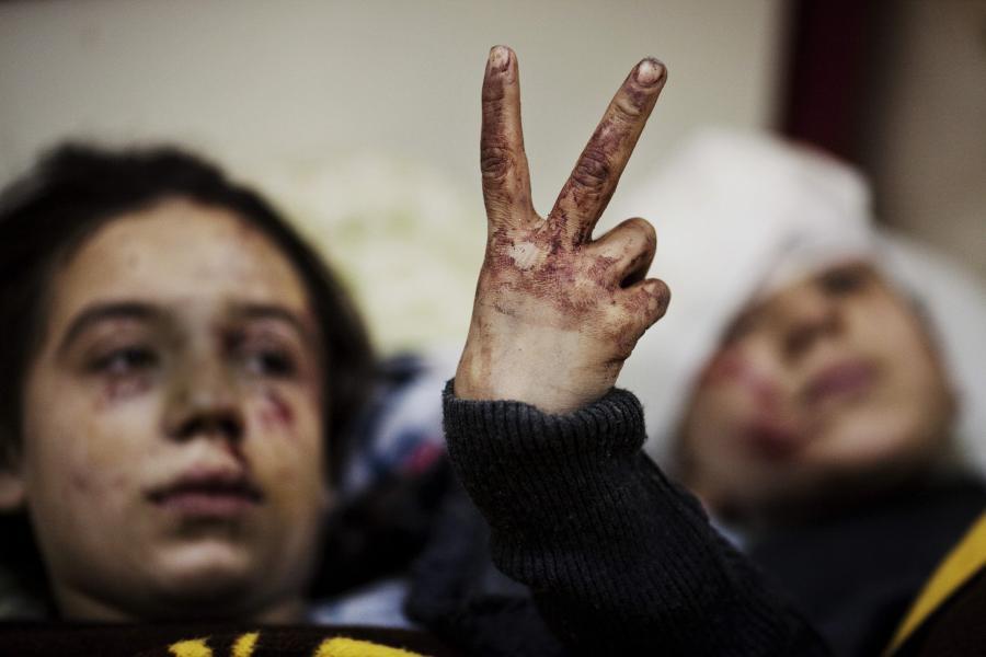 Syryjskie dzieci ranne w bombardowaniu miasta Idlib