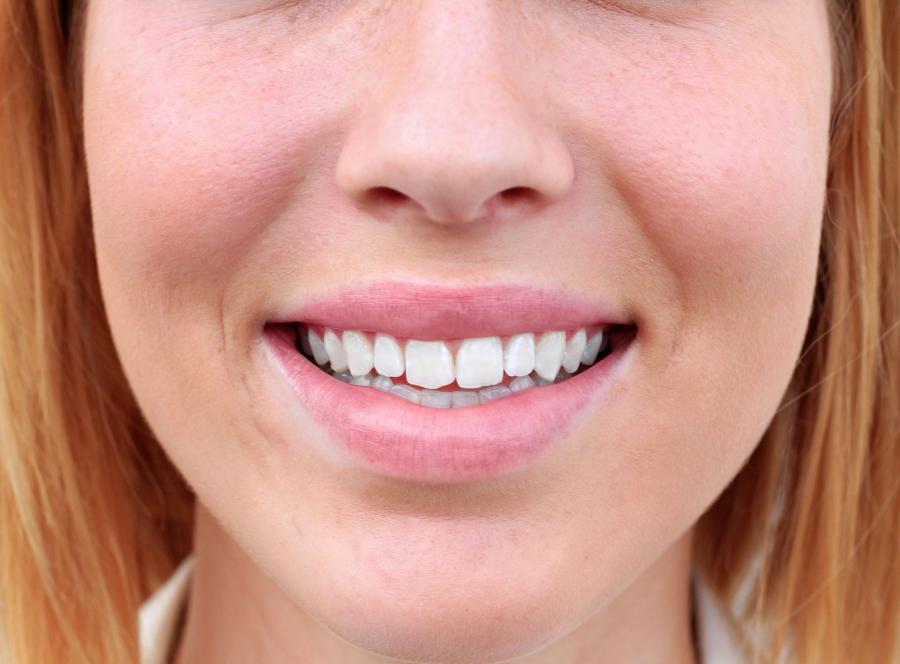 6. Schorzenia zębowe